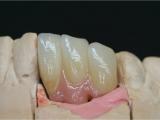 Delimplantat med tandköttsporslin- zirkonium.